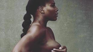 Serena Williamsről is elkészült a kötelező meztelen terhesfotó