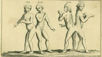 A ószőnyi sziámi ikrek voltak a 18. század legismertebb magyarjai