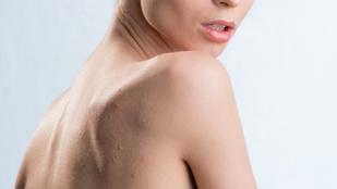 Kendall Jenner bőrgyógyásza szerint ezért ragyás a hátad