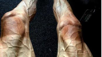 Mitől nézhet ki így valaki lába?