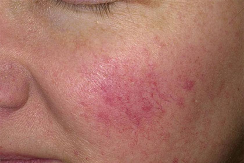 A bőrön megjelenő értágulatok kisebb májkárosodásra utalhatnak. A nem megfelelő májműködés okozta hormonzavar és vérbőség miatt alakulnak ki.