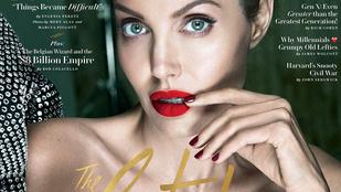 Angelina Jolie-nak arcbénulása van