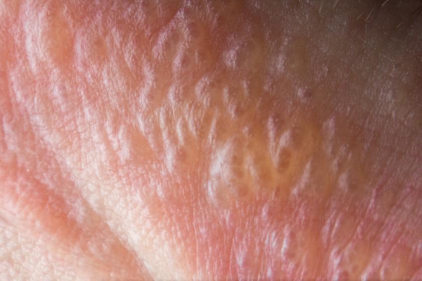 Mérges szömörce okozta hólyagos kiütések a bőrön