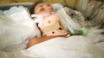 Autóbalesete óta kómában fekszik egy szegedi lány Bulgáriában