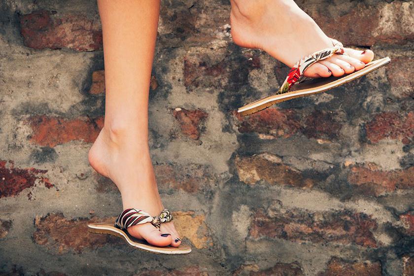 Flip-flop: divatbaki vagy valós egészségügyi kockázat?