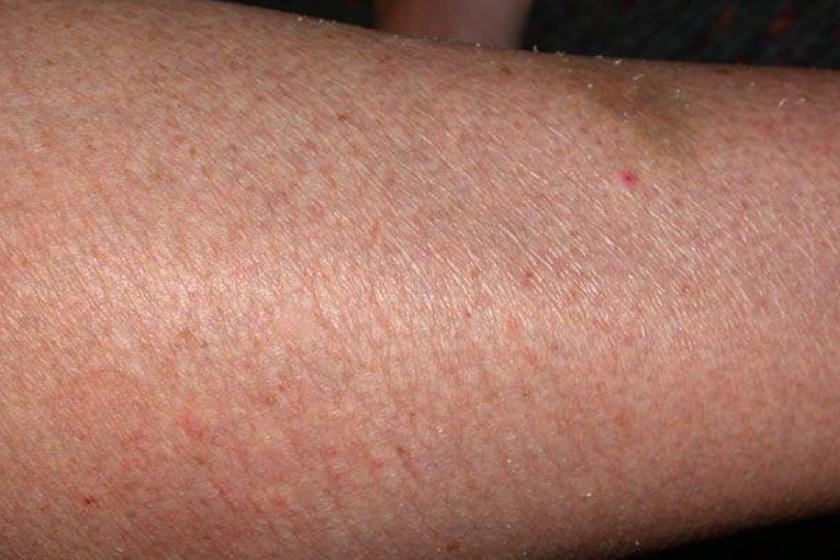 A száraz, viszkető, esetleg érdes tapintású bőr leginkább pajzsmirigy-alulműködés esetén jellemző.