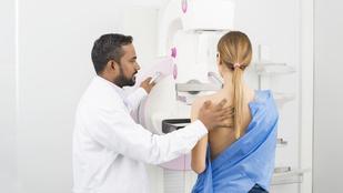 Mit tehetsz azért, hogy időben felismerd a mellrákot?