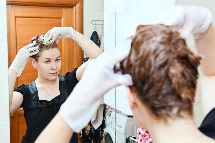 Pasztellszínű frizurát akart, de hatalmas kopasz folt lett a fején - Képek, hogy miért fontos tesztelni az új termékeket