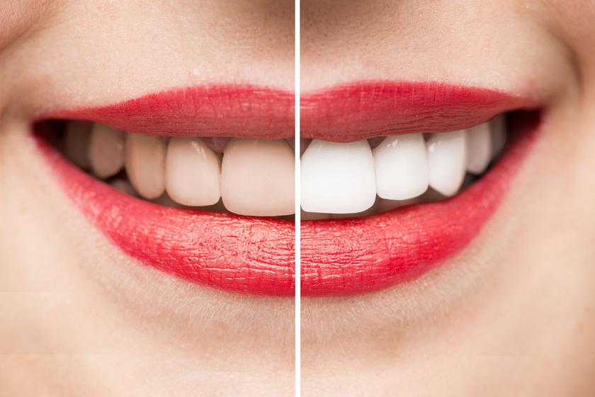 Kifehérítik a fogakat és leszedik a lerakódásokat ezek a házi módszerek: lassan, de biztosan hatnak