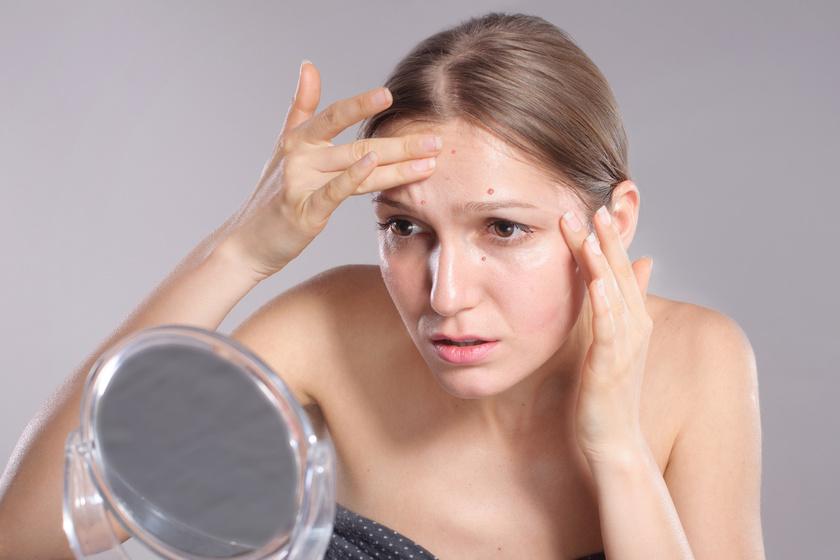 Így mutatja meg a bőr, ha rosszul működik a vese: a pattanástól a duzzadt szemekig