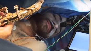 Agyműtéte közben adott szerenádot az orvosoknak ez a szaxofonos