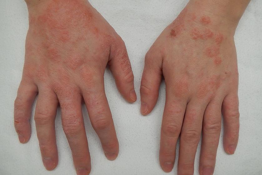 Az ekcéma eleinte viszkető, pirosodó, szárazzá váló foltok formájában jelentkezik, melyhez jellemzően folyadékkal teli hólyagok is társulnak.