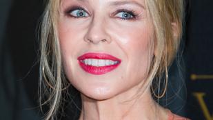 Nahát, Kylie Minogue arcával mi történt?