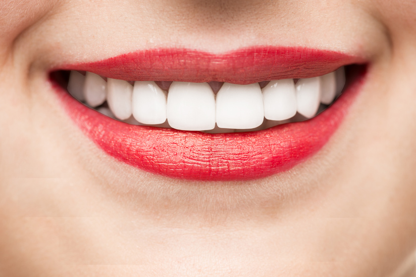 5 tipp a magabiztos mosolyért: egyszerűek, de kulcsszerepet játszanak