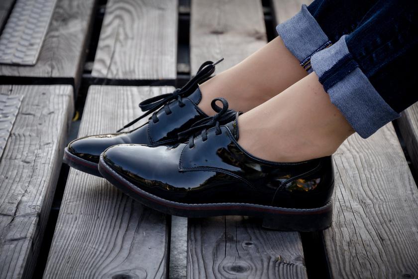 Ronda betegség terjed a divathóbort miatt: így ne hordd a cipőt!