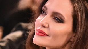 Angelina Jolie arcán vasaltak egy jókorát