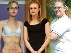 Túlsúlyosból lett anorexiás, 66 kilót fogyott