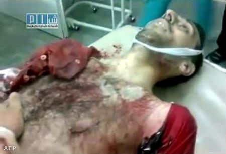 A tegnapi homszi tüntetés egyik áldozata