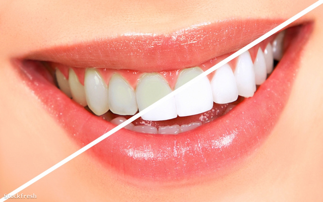 stockfresh 456043 teeth-whitening sizeS