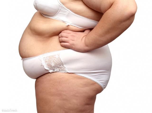 stockfresh 566293 overweight-woman-body-in-underwear sizeM