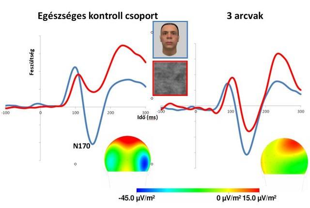 EEG kísérletben az egészséges emberekben az N170 arcoknál (kék vonal) nagyobb, mint zajos ábráknál (piros). A különbség a jobb féltekén a legnagyobb, de arcvakoknál jóval kisebb mértékű, amiből látszik az arcfeldolgozásban részt vevő idegrendszeri folyamatok károsodása.