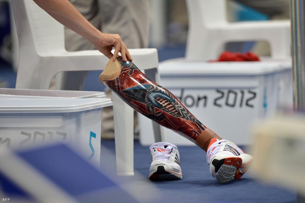 A belga Sven Decaesstecker műlábát igazgatja egy önkéntes a férfi 200 méteres vegyes úszás rajtja előtt.