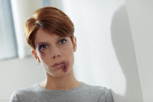 stockfresh 713041 domestic-violence sizeM