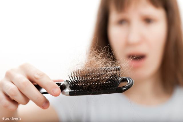 stockfresh 611498 loss-hair-comb-in-women-hand sizeM