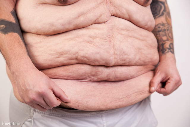 Jason Young a gyomor-bypass után