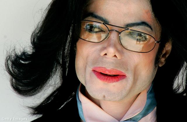 Michael Jackson a tankönyvi esete annak a lelki rendellenességnek, amelyet az angol nyelvű szakirodalom a Body Dysmorphic Disorder (BDD) kifejezéssel ír le. Ez azt jelenti, hogy valaki képtelen úgy nézni saját magára, ahogyan azt mások teszik. A pop 12 éve halott királyánál a fehérített bőr csak a kezdet volt, a véget pedig valószínűleg az állbeültetés jelentette.