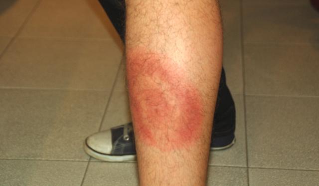 Lyme-folt