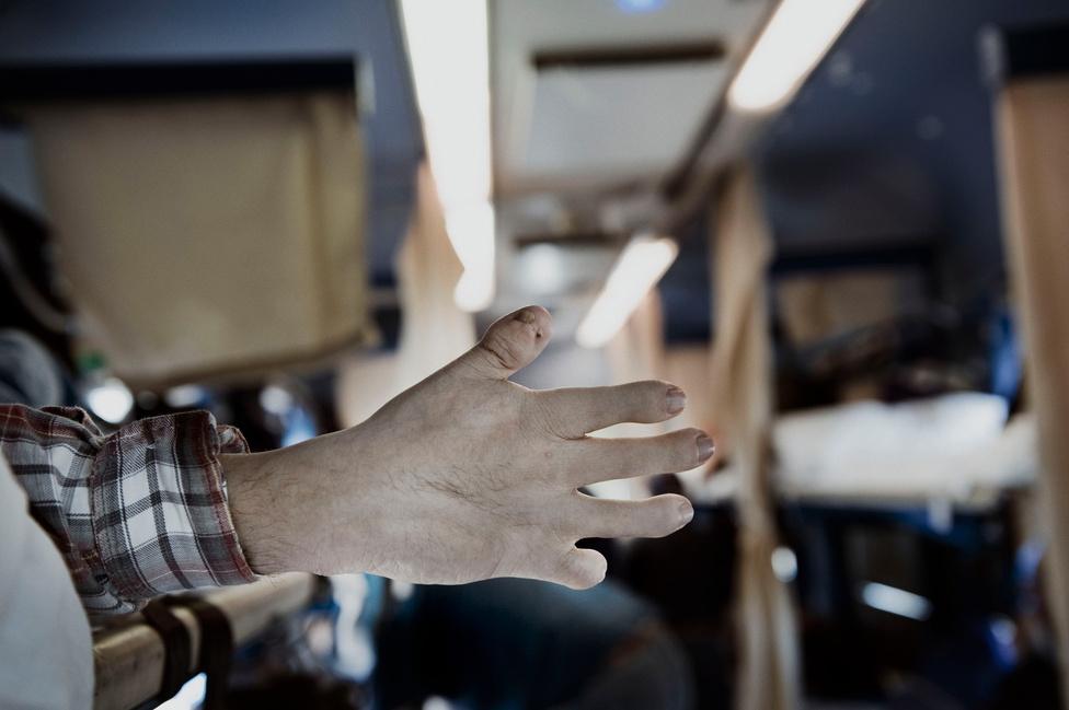 A Fehér Vonat azon utasai, akik képtelenek magukról gondoskodni, extra figyelmet és gondoskodást igényelnek. Ezért ők egy külön kocsiban utaznak.