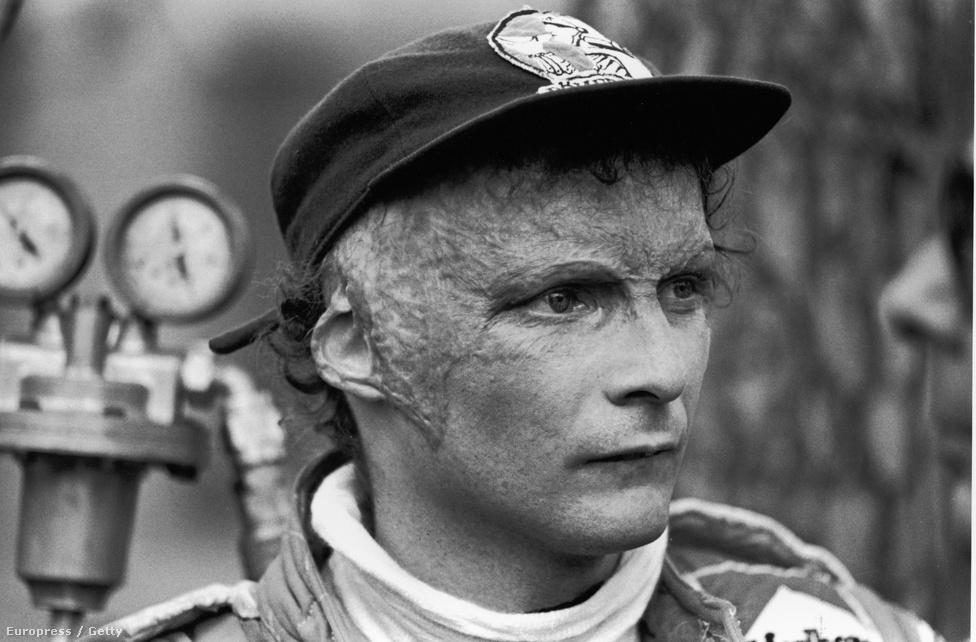 A 76-os bukásban szerzett égési sebek örökre Lauda fején maradtak. Jobb füle jórészt leégett, füstmérgezést kapott, és a poroltó is szennyezte a tüdejét. Felépült, de arcát sosem plasztikáztatta meg, idősebb korára a védjegyévé is vált a sok égési nyom. A baleset óta hord állandóan sapkát, mindig pirosat.