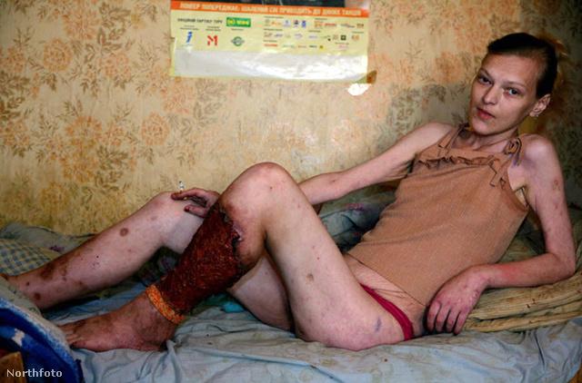 Tanya egy orosz lány, aki hónapok óta használja a krokodil nevű drogot.