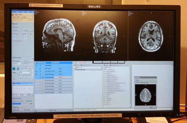 A marketingesek legújabb nagyágyúja az MRI szkenner