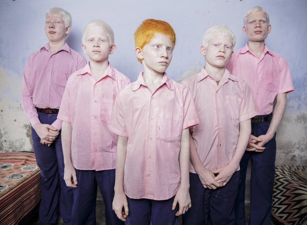Beállított portré – Első hely: Vak, albínó gyerekek Indiában