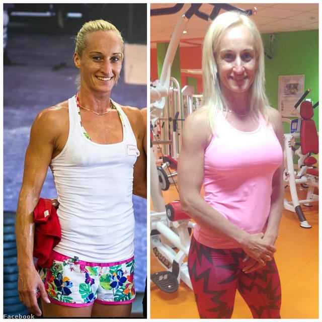 Kárpáti Andrea a műtét előtt és után