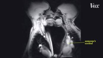 Ilyen a szex MRI-ben
