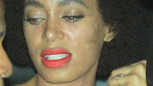 Solange Knowles arcát kiütések lepték el az esküvőjén