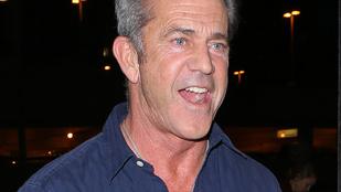 Ilyen Mel Gibson kopaszodó feje
