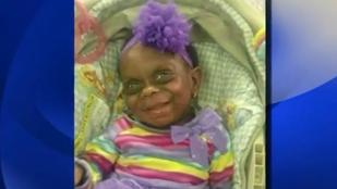 Cikiztek egy kisgyereket a születési rendellenessége miatt a trollok, kiakadt az anyja