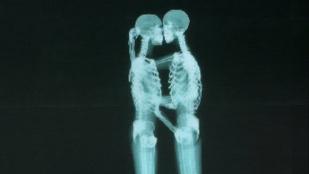 Ön hogy érezné magát egy csókolózó leszbikus pár láttán?