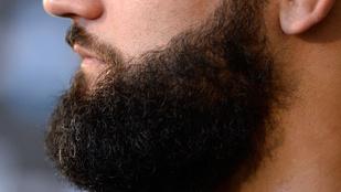 Nem árt, ha ezt tudja a szakállról