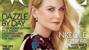 Egészen fura lett Nicole Kidman Vogue-címlapja