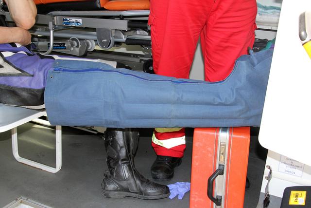 Ez a láb bizony csúnyán eltört, azóta már összedrótozták és Balázs jól van