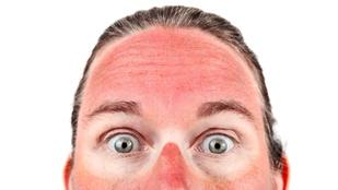 A napozáskori leégésről nem a napsugarak forrósága tehet