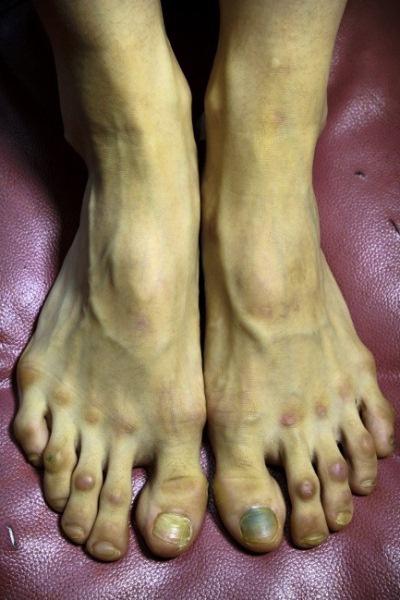 A balett okozta sérülések
