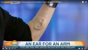 Egy férfi kilenc évet szánt rá, hogy fület növesszen a kezén