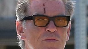 Sebhelyet villantott Pierce Brosnan