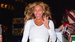 Helyreigazítás: nem a tegnapi volt Beyoncé legrosszabb fotója